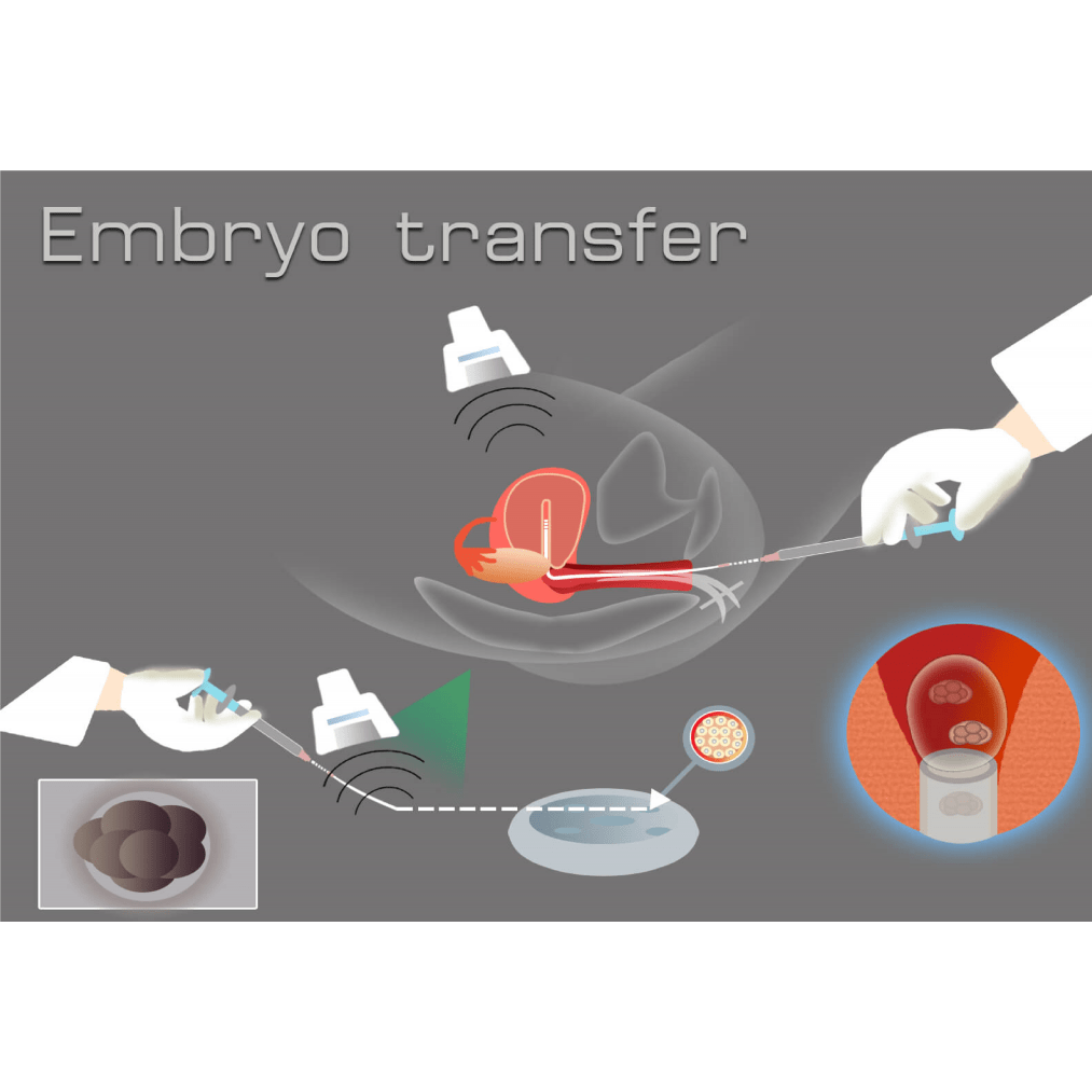 ET2 - انتقال جنین